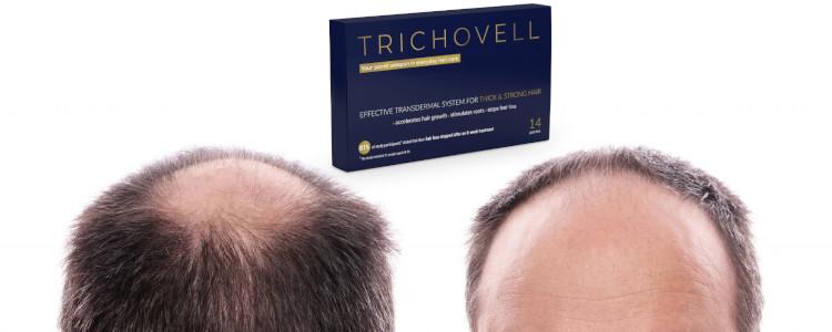 Mennyibe kerül Trichovell? Hol lehet vásárolni?
